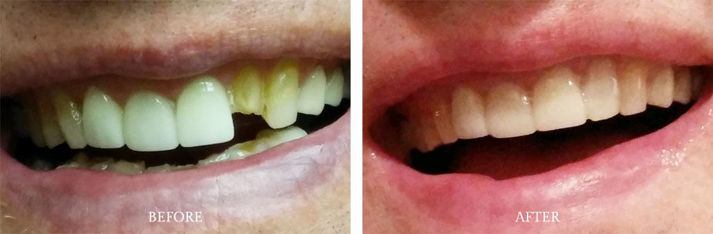 Dentist Paoli